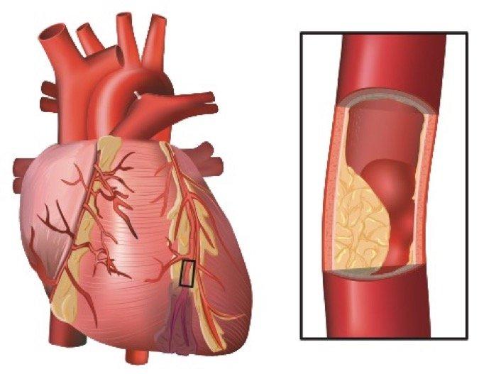 heart cholesterol