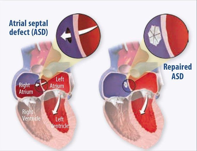 Heart atrials